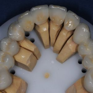 Crowns - Occlusal